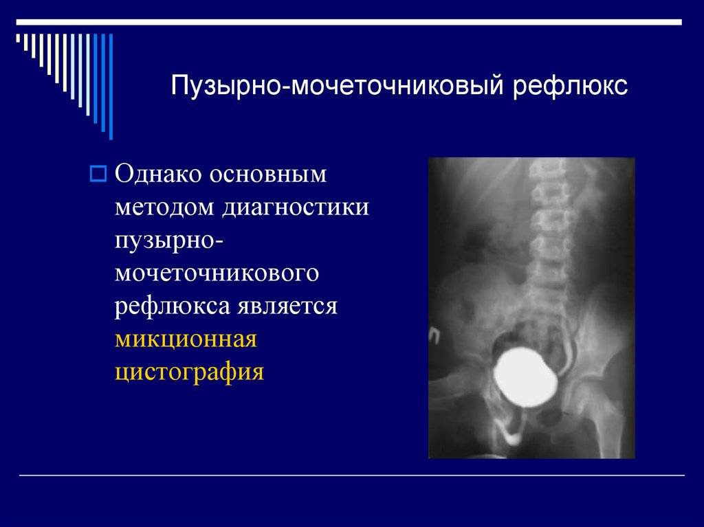 Пузырно - мочеточниковый рефлюкс | университетская клиника