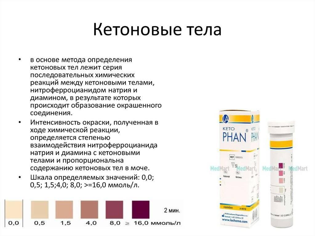 Ацетон в моче: причины появления ацетона в моче, прием уролога в москве