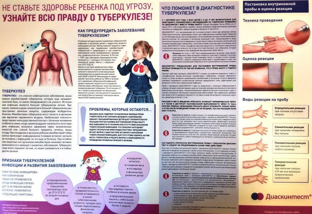 Особенности туберкулеза у подростков: симптомы и первые признаки в 7–13, а также в 14, 15, 16 и 17 лет