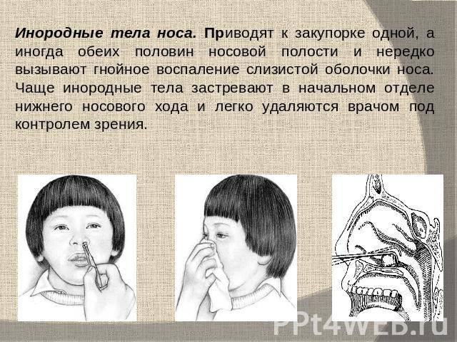 Ребенок засунул в нос пластилин что делать