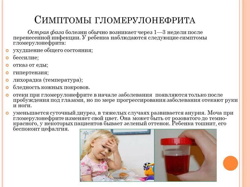 Гломерулонефрит у детей: симптомы и лечение острой и хронической формы