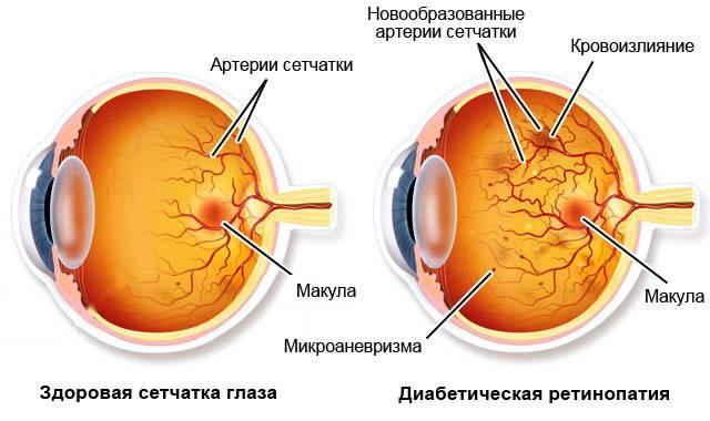 Из-за чего возникает фоновая ретинопатия и как она лечится?
