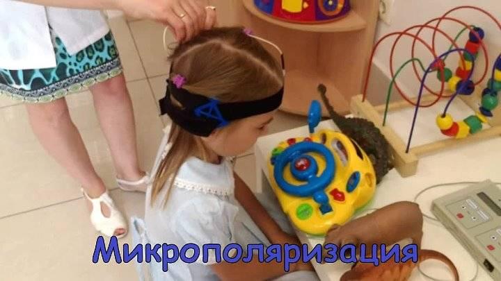 Микрополяризация - лечение нервной системы по методике разработанной в институте мозга человека им. н.п.бехтеревой ран.