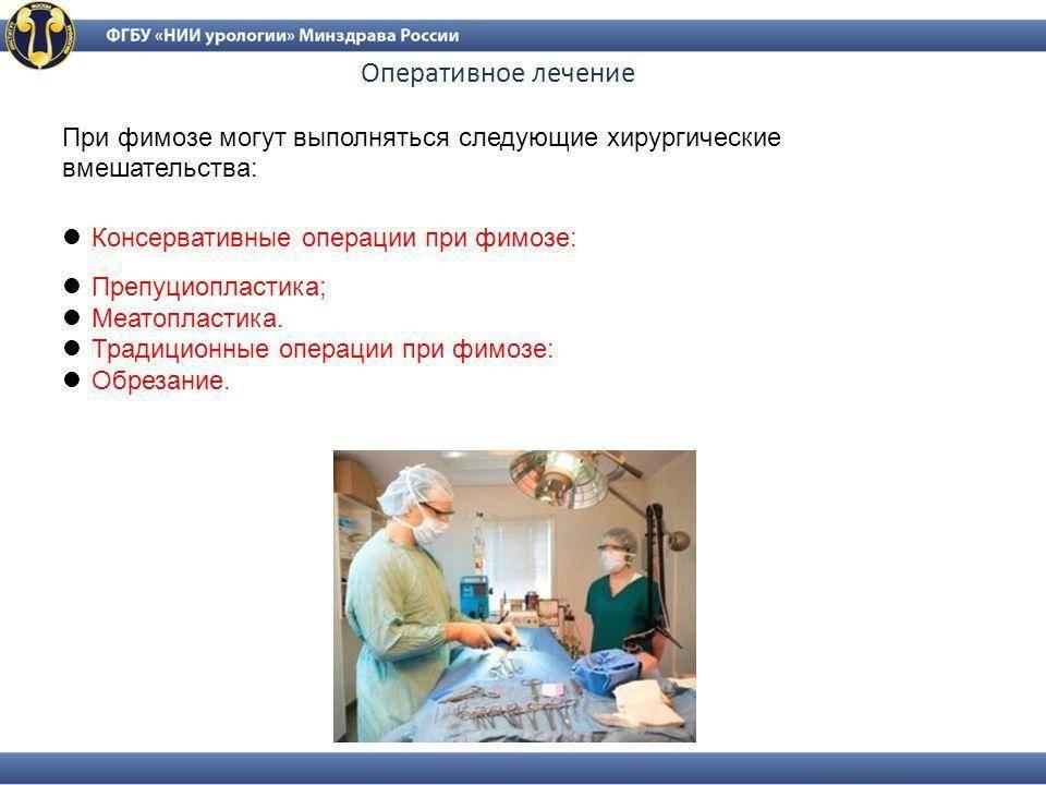 Операция по удалению фимоза у мужчин: цена от 15000 руб. в день обращения; лазерная операция при фимозе в москве