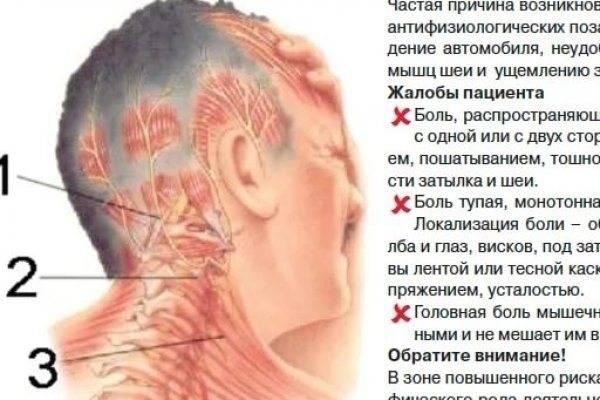 Заклинило шею, больно поворачивать: что делать в домашних условиях?
