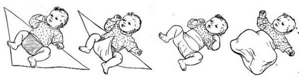 Широкое пеленание при дисплазии тазобедренных суставов: видео и фото инструкция