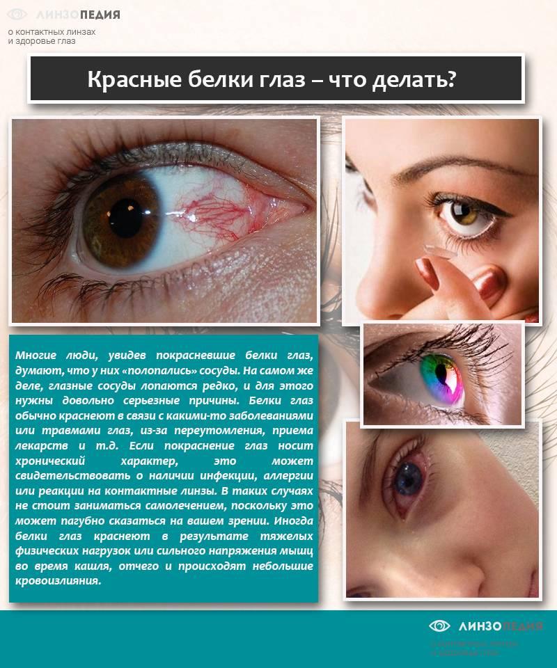 Сезонная аллергия (поллиноз)