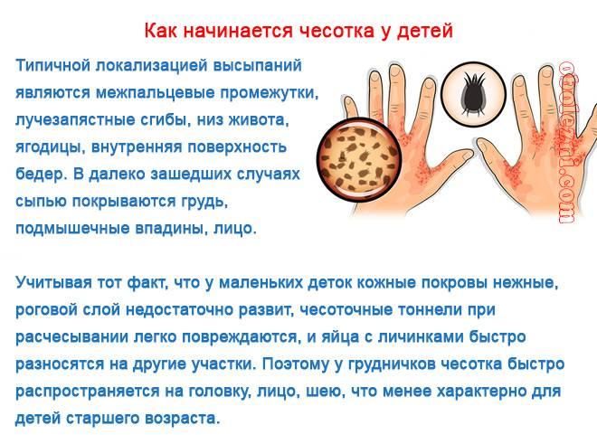 Чесотка. симптомы, диагностика, лечение. - доказательная медицина для всех