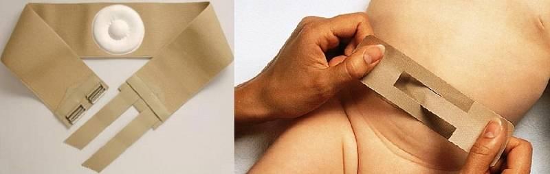 Избавление от пупочной грыжи в домашних условиях: обзор пластырей для новорожденных и особенности их применения