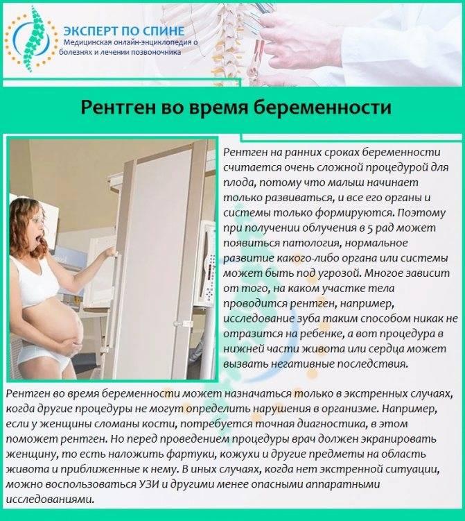 Зачем делать флюорографию мужу до и во время беременности жены. для чего нужна флюорография мужа при беременности? полезная информация для беременных.