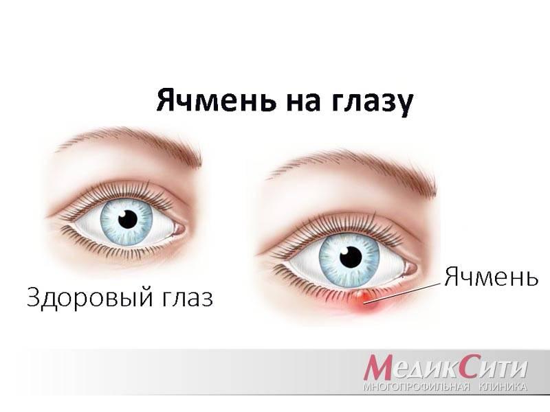 Ячмень на глазу у ребенка: 8 причин появления, 3 главных симптома, 7 правил лечения и 6 мер профилактики