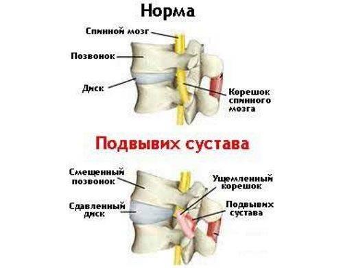 Вывихи, растяжения, разрыв связок: симптомы, лечение, операции