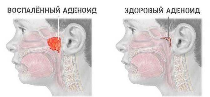 Заложенность носа по ночам