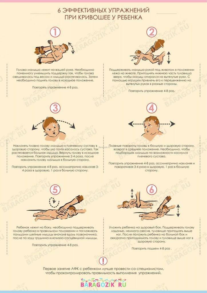 Кривошея: что это такое, причины, симптомы и способы лечения - московский центр остеопатии