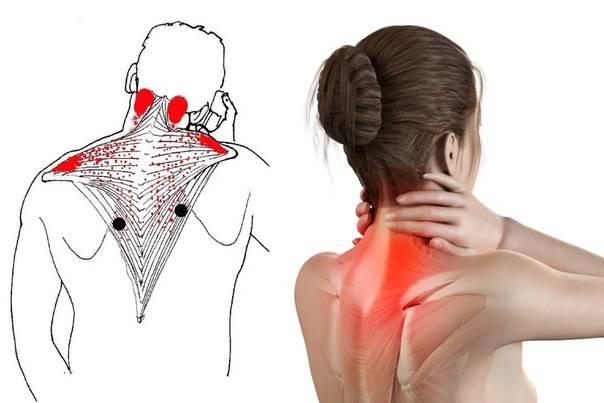 Боль в шее сзади: причины, симптомы и методы лечения