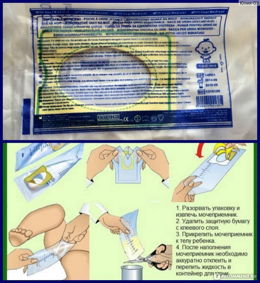 Как правильно собрать мочу у грудничка мальчика: подробная инструкция по сбору у новорожденных