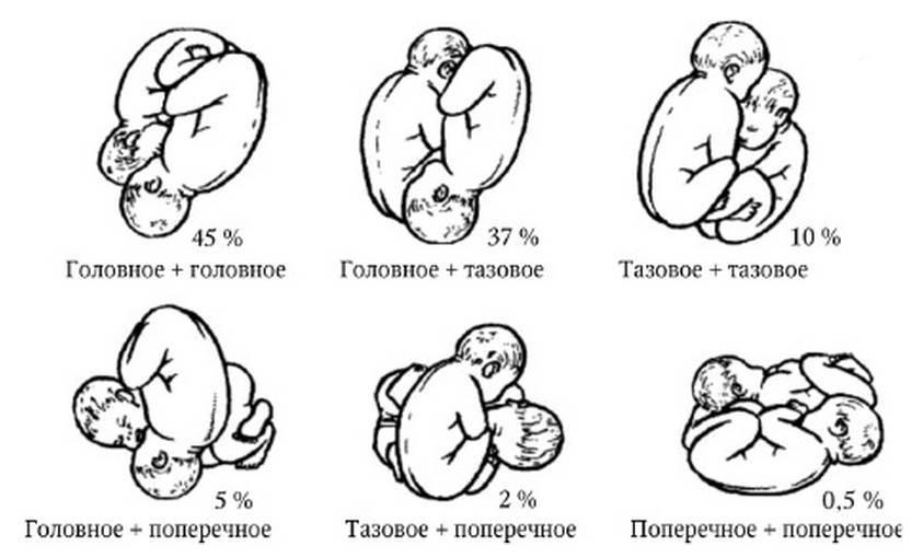 Перинатальные исходы при монохориальной многоплодной беременности, осложненной синдромом селективной задержки роста плода » библиотека врача