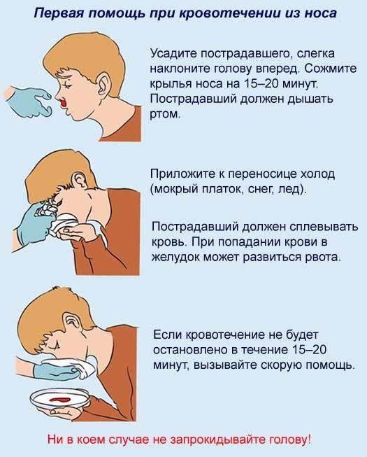 Кровотечение: это — 7 видов и методы остановки крови