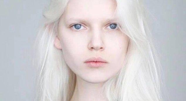 Альбинизм у детей: причины, симптомы, диагностика, лечение | компетентно о здоровье на ilive