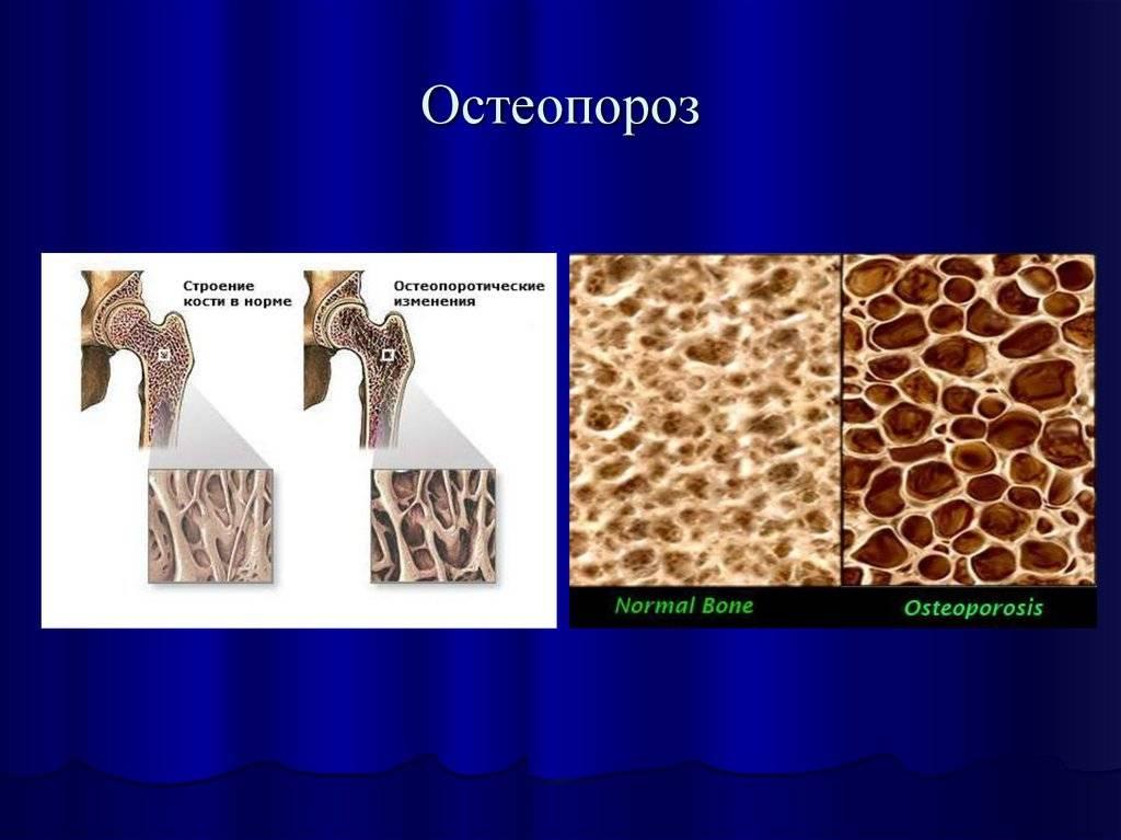 Остеопороз у детей | компетентно о здоровье на ilive