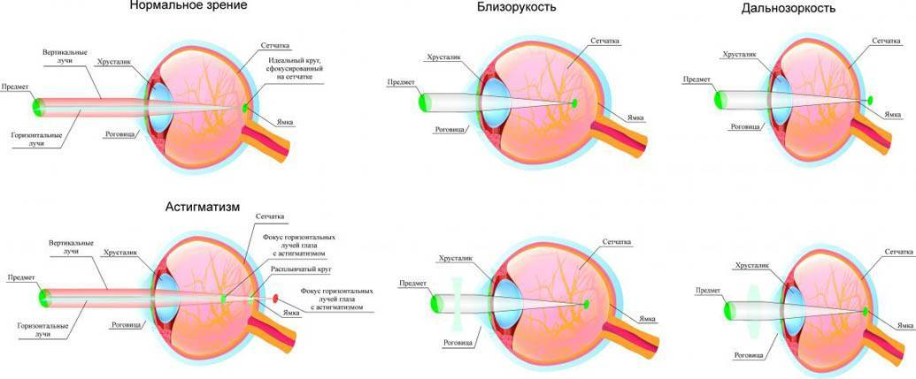 Гиперметропия: симптомы, диагностика, лечение «ochkov.net»