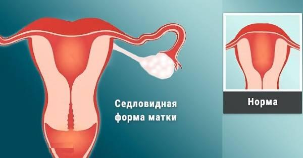Кровотечение во время ранней беременности: это нормально? причины и признаки имплантационного кровотечения