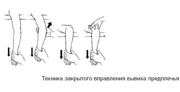 Боль в плечевом суставе: причины возникновения, диагностика и лечение