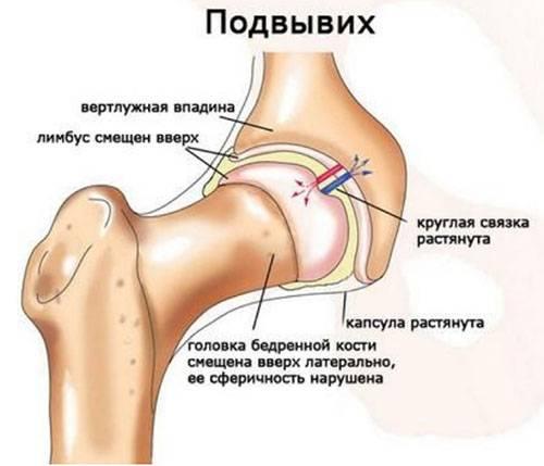Лечение острых травм спинного мозга: переломов и вывихов