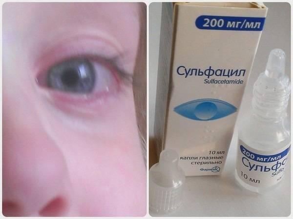 Конъюнктивит при беременности: чем лечить, какие глазные капли можно, каковы последствия для плода?