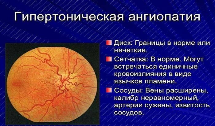 Ангиопатия сетчатки. виды ангиопатии сетчатки. диагностика и лечение