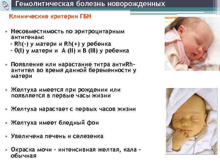 Гемолитическая болезнь новорождённых — большая медицинская энциклопедия
