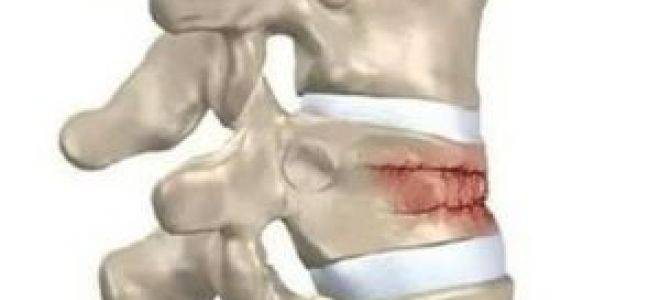 Реабилитация после перелома позвоночника: как восстановиться