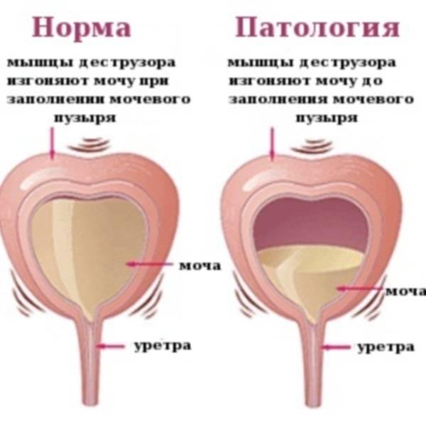 Редкое мочеиспускание и другие симптомы: боль, температура, отеки
