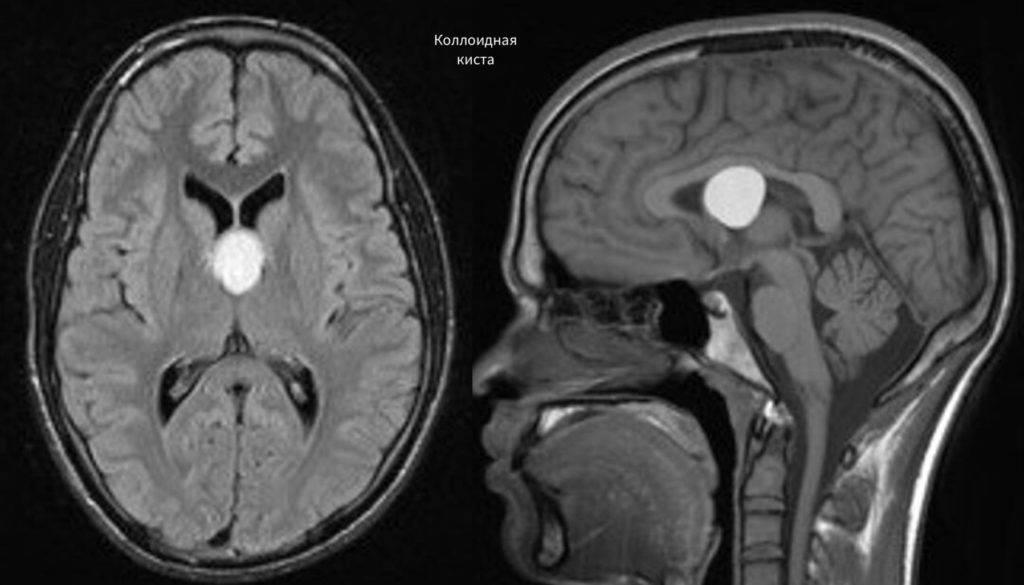 Лечение кисты головного мозга