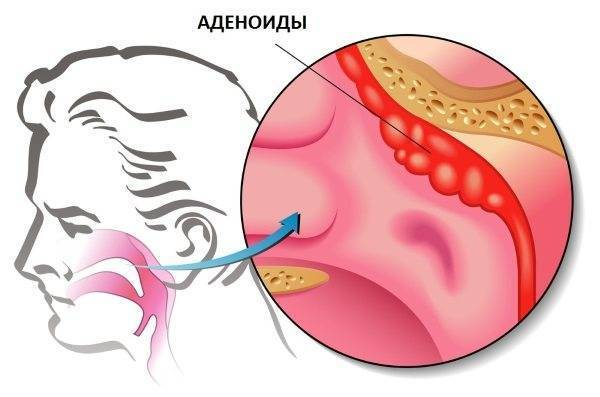 Лечение аденоидов без операции, лазерное безоперационное лечение аденоидов в носу у взрослых