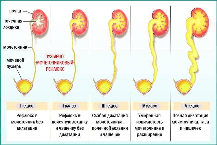 Консервативная урология детская (терапевтическое лечение почек и мочевого пузыря у детей)