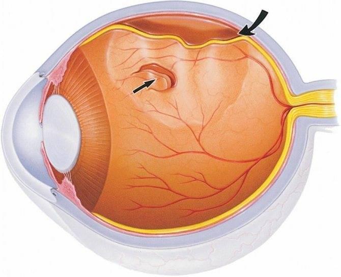 Отслойка сетчатки глаза: операция и лечение лазером при отслоение сетчатки глаза