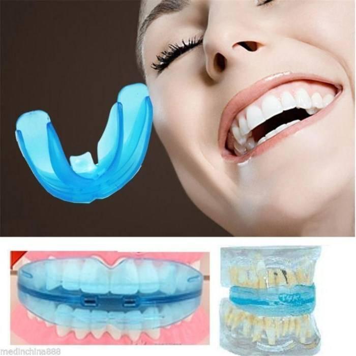 Съемные ортодонтические аппараты для взрослых