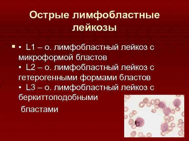 Острый лимфобластный лейкоз (острый лимфолейкоз)