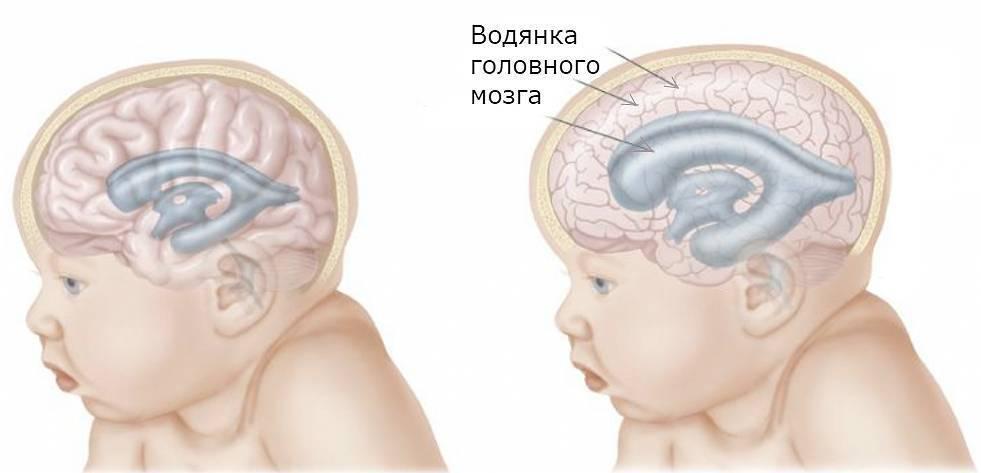 Гипоксия плода. причины и последствия гипоксии у новорожденных