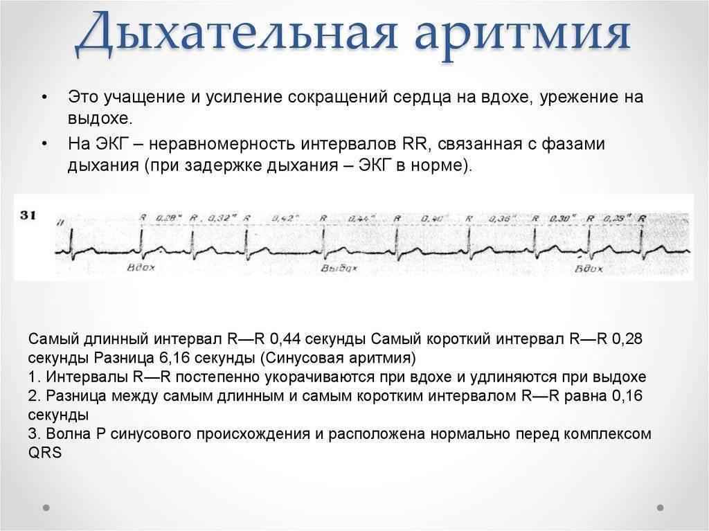 Синусовый ритм экг: что означает - расшифровка результата