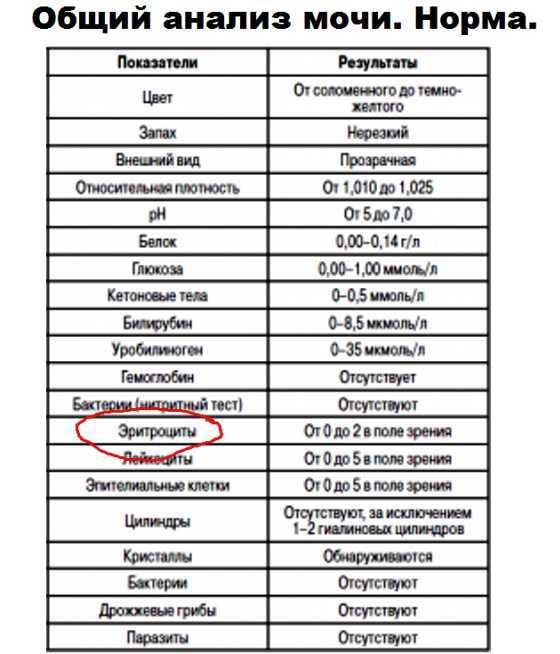 Белок в моче у детей: причины появления белка в моче у детей, прием уролога в москве