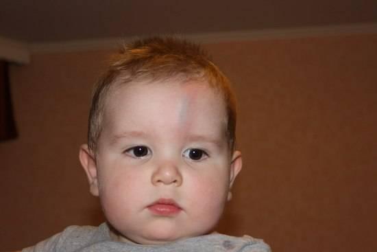 Травма у ребёнка — куда обратиться за помощью? – напоправку