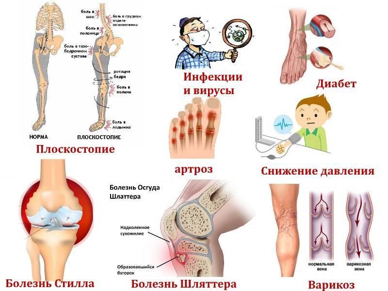 Онемение ног и рук