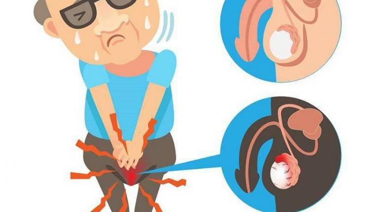 Боль в мошонке у детей: возможные заболевания, симптомы