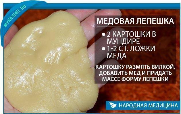 Лепешка от кашля на меду и горчице: - рецепты компрессов для детей и взрослых