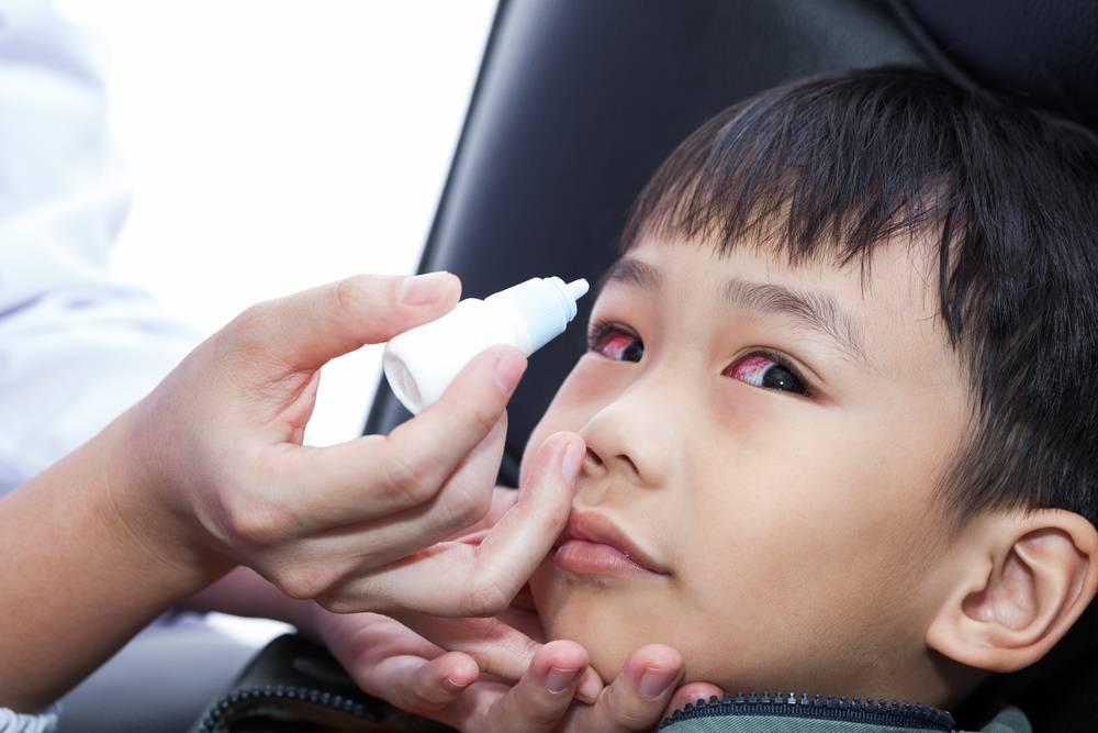 Быстрое и эффективное лечение конъюнктивита у ребенка