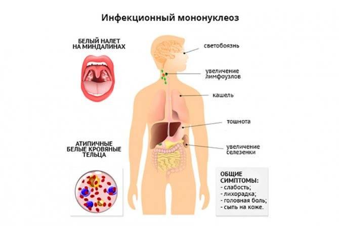 Инфекционный мононуклеоз - лор клиника №1