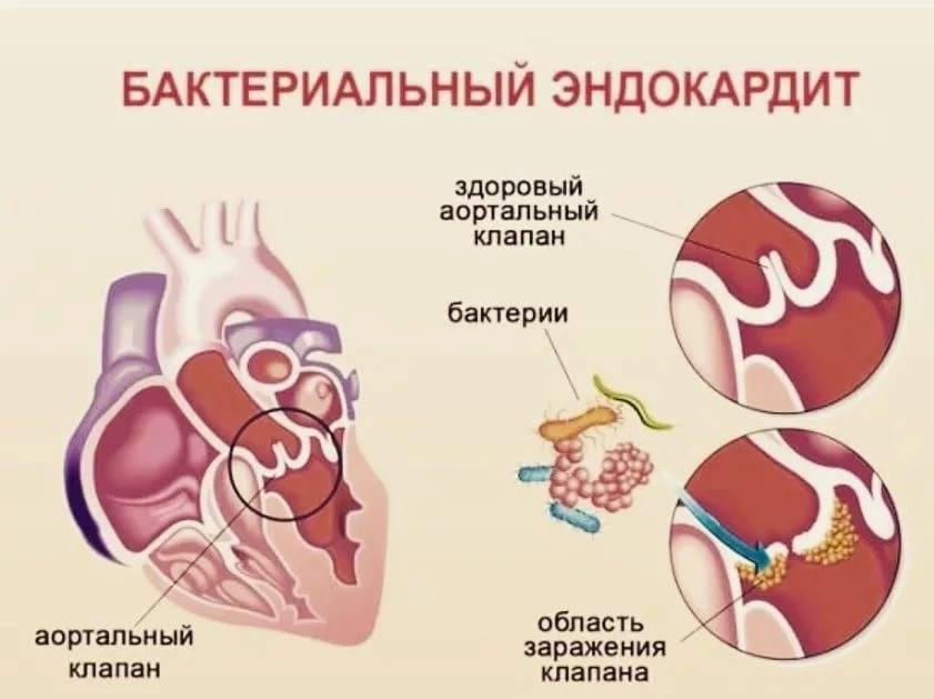 Эндокардит - причины, диагностика и лечение