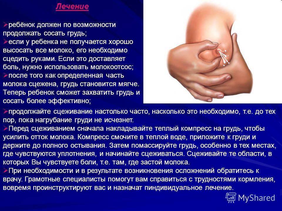 Лактостаз: симптомы, причины, лечение, последствия   москва